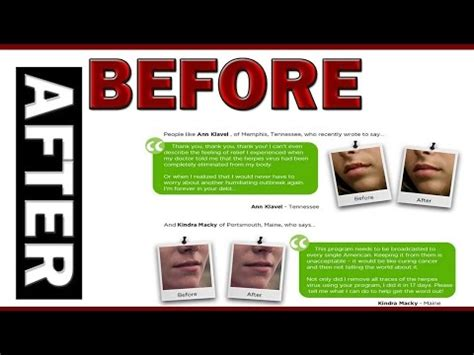 herpes cure tagalog picture 10