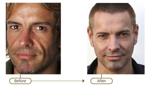is sculptra good for acne scaring picture 7