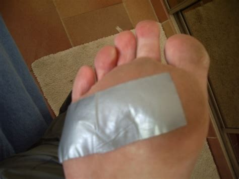 wart removal with duct tape picture 6