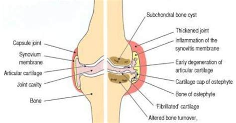 causes of joint effusions picture 15