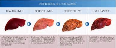 how reliable are the results of a liver picture 1