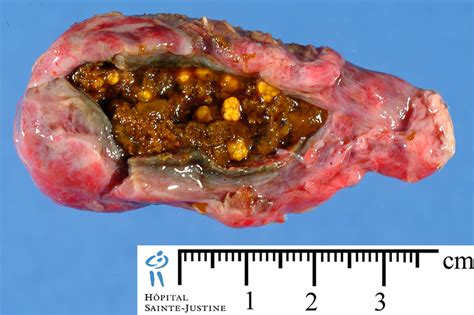 gall bladder sludge picture 1