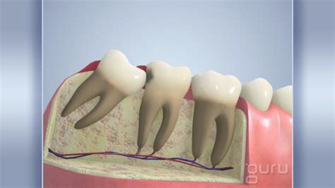cavities in wisdom teeth picture 10
