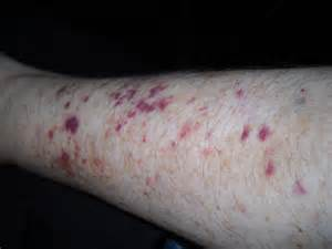 patches of skin left arm picture 5