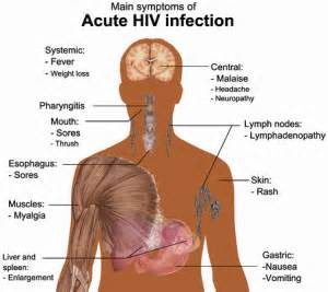 early signs and symptoms of hiv infection in picture 9