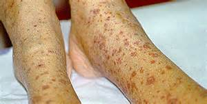 appearance of blood vessels under skin picture 3
