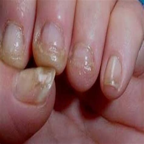 hand nail fungus cure picture 11