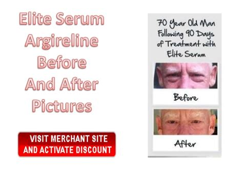 dr oz youthkit and revitol picture 7
