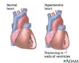 earthclinic ailments high blood pressure picture 9