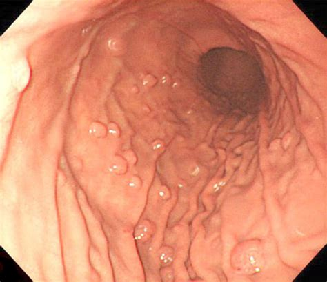 does colon cancer cause reflux picture 7