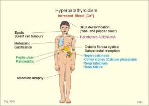 Hyperparathyroidism and weight gain picture 1