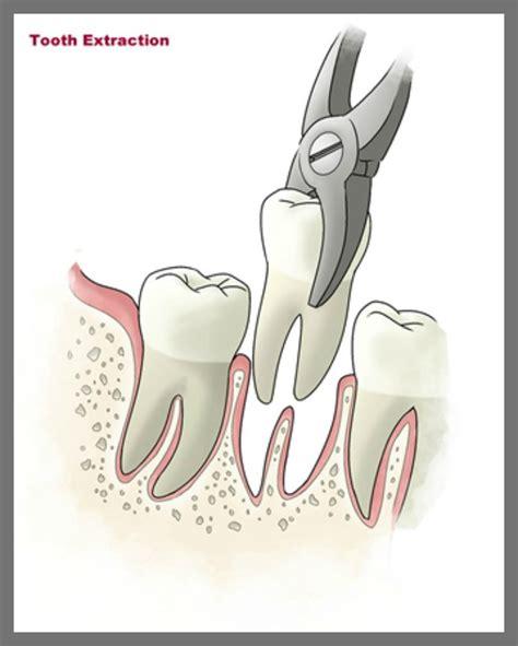 babt teeth picture 5
