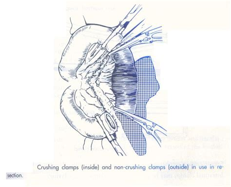 bowel resection picture 7