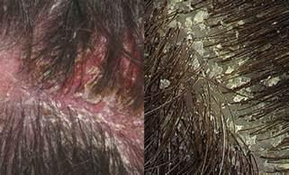 flaky dandruff like skin on body picture 2