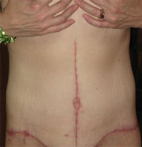rapid skin aging after hysterectomy picture 7