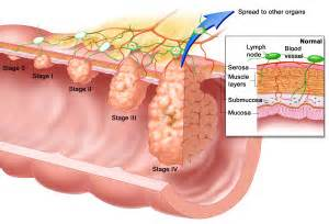 colon cancer and stages picture 14