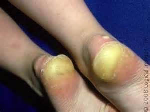 sexual problems in diabetics picture 9