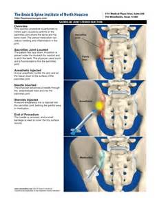 how to inject steroid in the joint picture 6