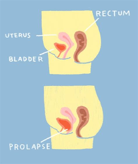 bladder weakness since pregnancy picture 5