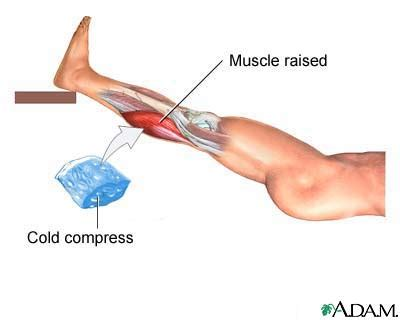 info on pull muscle picture 7
