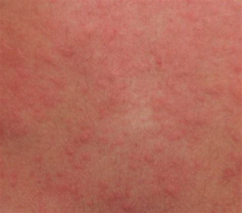 pictures of body hives picture 3