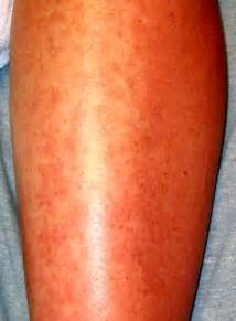 cause hives picture 2