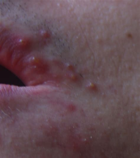 acne around mouth area picture 7