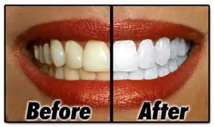 best product to whiten your teeth at home picture 10