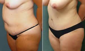 breast augmentation thourgh the belly on in fort picture 10