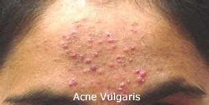 white pimples not acne picture 11