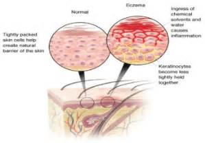 treatment for eczema on your vagina picture 9