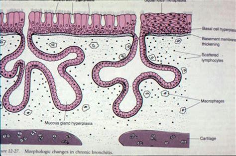 bronovil canada picture 7
