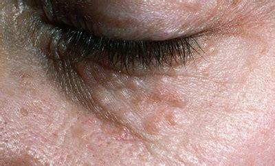 Ocular cholesterol deposits picture 3