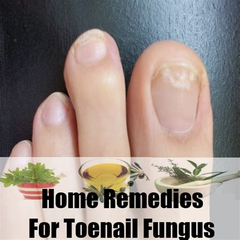 natural remedy for toenail fungus picture 9