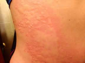 pictures of hives picture 3