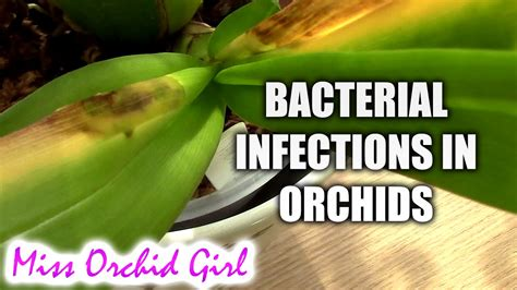 why are we not inundated with bacterial infections picture 4