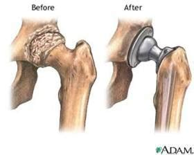 cost of knee joint replacement picture 2