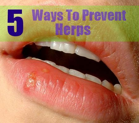ways of contracting herpes picture 5