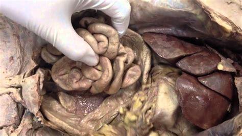 feline liver function picture 3