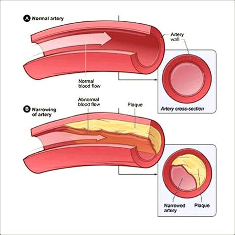 Cholesterol and plaque picture 1