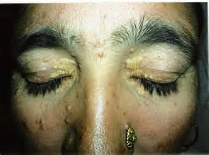 fatty deposit on skin near genital picture 14