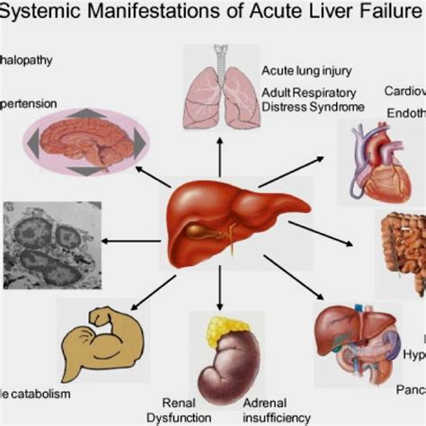 levels of liver failure picture 3