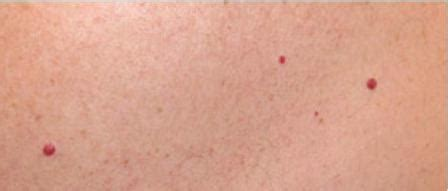 red circles on skin picture 3