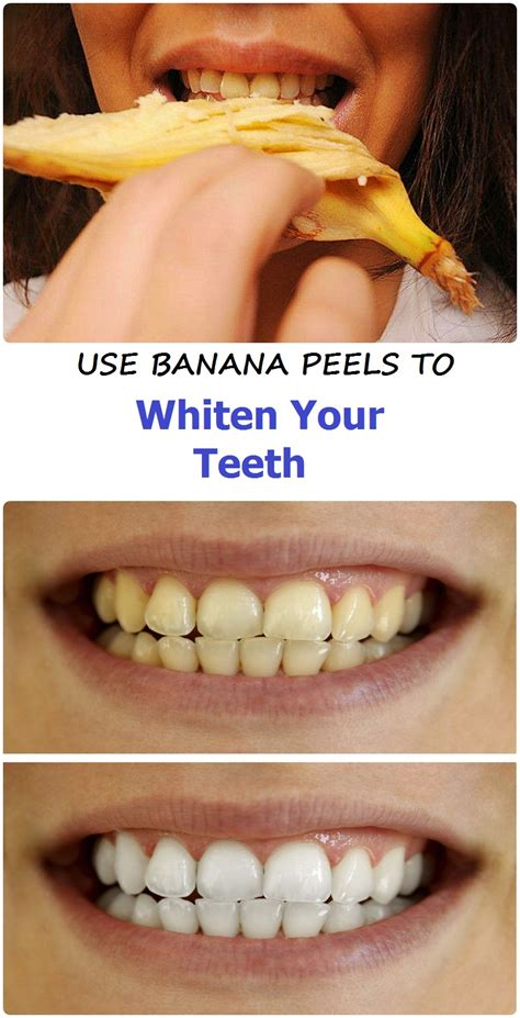 how much is it to whiten your teeth picture 1
