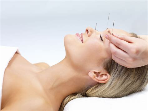 acupunture for acne picture 4