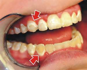 can dentist remove cement off of h picture 7