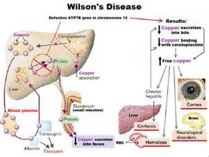 what are the early signs of liver damage picture 17