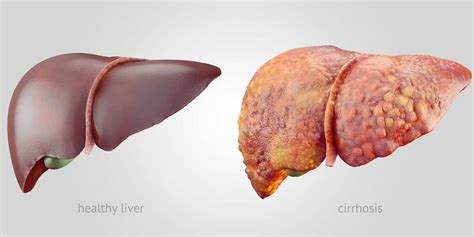 liver diseases picture 7