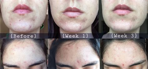 acne marks picture 10