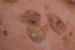 treatment genital warts hard on liver picture 7